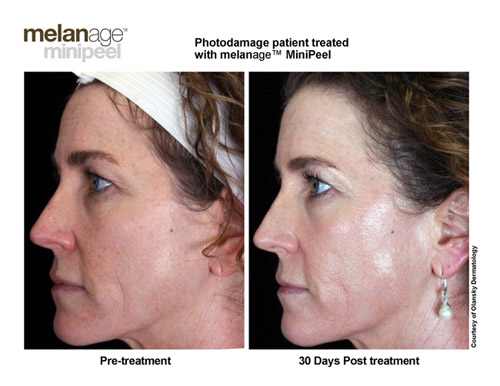 Melanage Minipeel In Hilton Head Island Amp Bluffton Sc